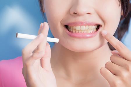 歯茎が黒くなる原因