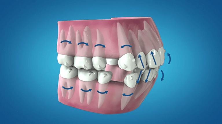 歯型をとり、マウスピースの作成依頼をする
