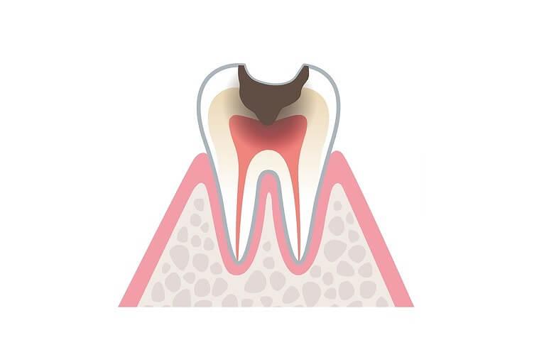 虫歯リスクが高まる
