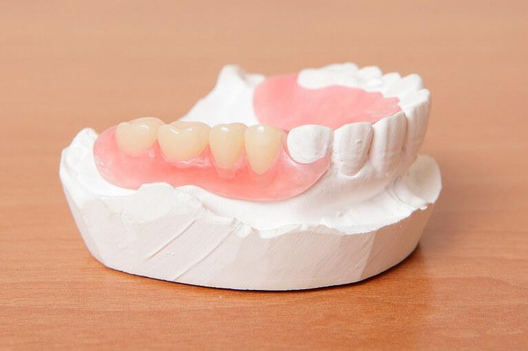 保険適用外(自費)の入れ歯