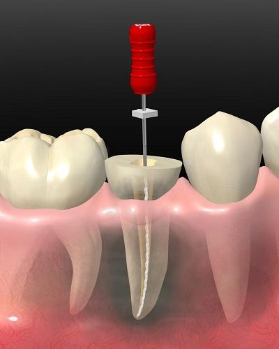 虫歯で歯がボロボロ