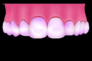 歯垢(プラーク)の染め出し