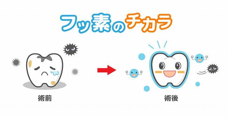 フッ素を使った虫歯予防について