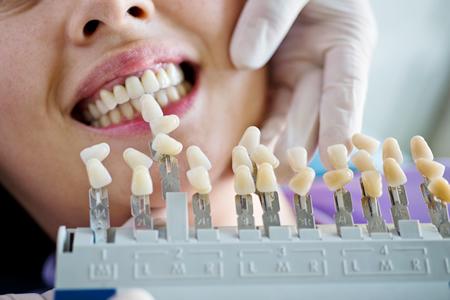 人工歯素材