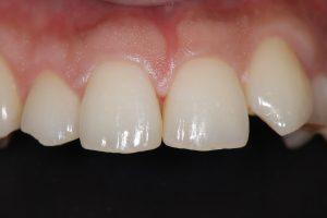 歯の隙間を埋める方法