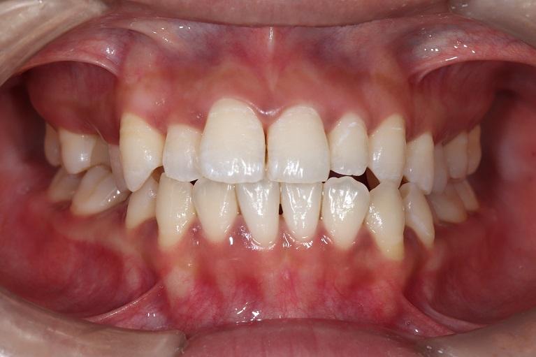 歯石取り(歯石除去)+歯のクリーニングの症例①after