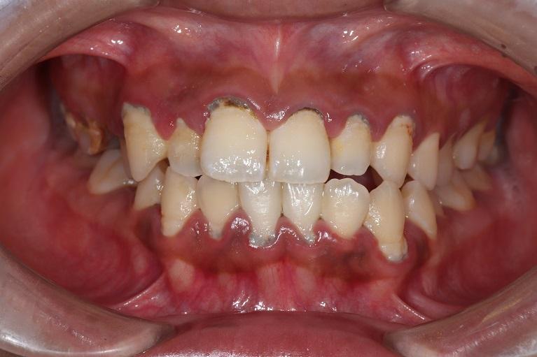 歯石取り(歯石除去)+歯のクリーニングの症例①before