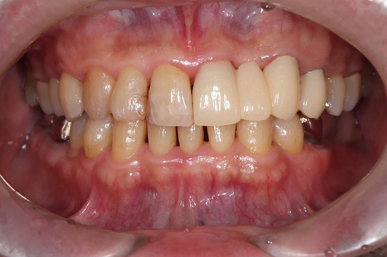 歯石取り(歯石除去)+歯のクリーニングの症例②after