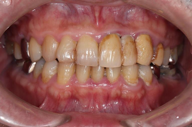 歯石取り(歯石除去)+歯のクリーニングの症例②before