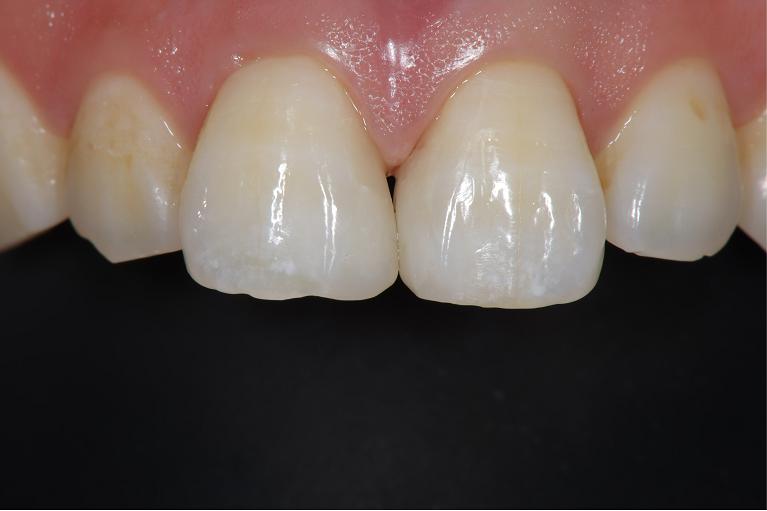 歯間離開に対するダイレクトボンディングafter