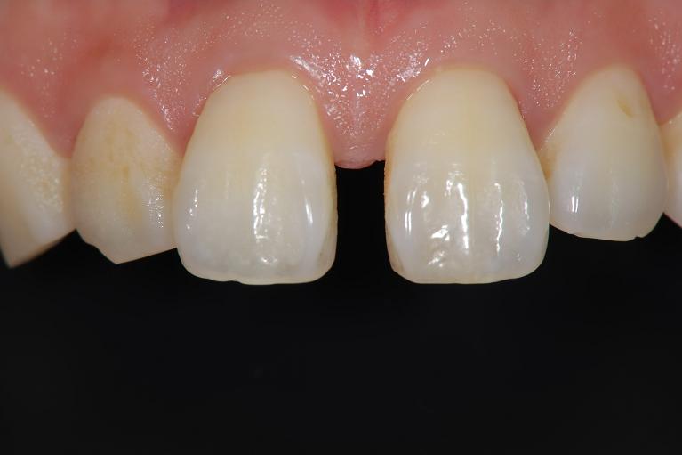 歯間離開に対するダイレクトボンディングbefore